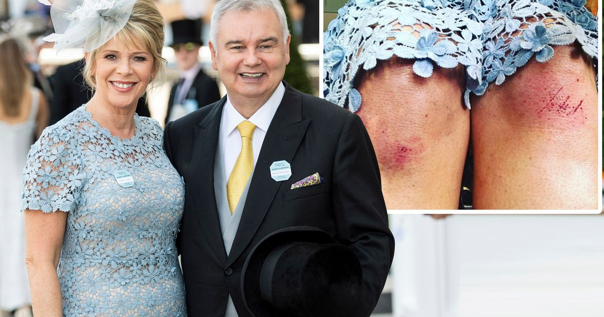 Ruth Langsford reveals painful looking injuries after suffering a nasty fall at Epsom Derby alongside husband Eamonn Holmes