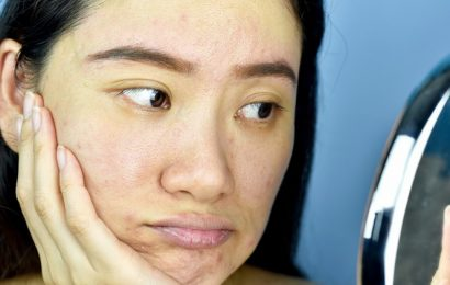 Combat dull skin during winters with these tips
