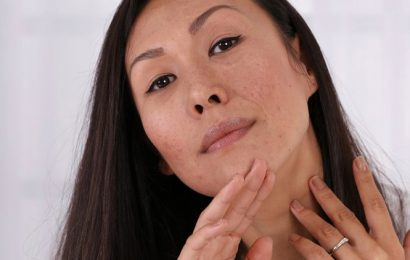 What is the difference between scars and hyper pigmentation?