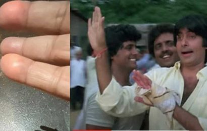Amitabh Bachchan injured his hand with a Diwali firecracker, used to camouflage it in films with handkerchief. See pics