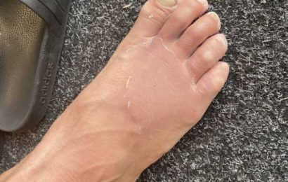 'Mad' Wagner lauded for bowling with broken toes