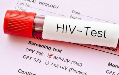 HIV-AIDS surveillance in Ahmedabad dropped to nearly 50 per cent due to Covid: AMC
